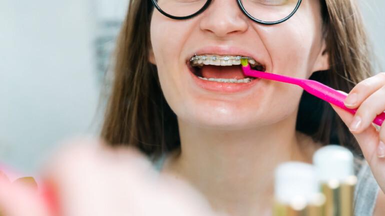Szczoteczka do aparatu ortodontycznego – jaką wybrać?